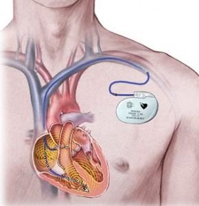 Un Guide complet sur les stimulateurs cardiaques pacemaker-290x300